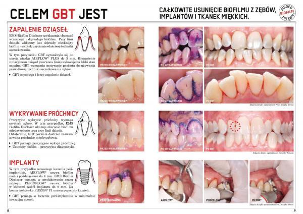 Gabinet-Stomatologiczny-broszura-15